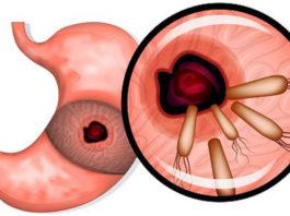 Эти 7 мощных средств убивают бактерии, которые вызывают рак желудка, язвы, гастрит, вздутие живота, аллергию и не только!