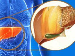Избавьтесь от жировой болезни печени и похудейте с помощью этого 3-х дневного лечения!