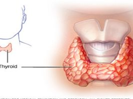 Как вылечить щитовидную железу с помощью всего двух ингредиентов!