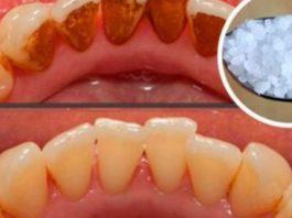 Вот как избавиться от зубного камня без помощи стоматолога