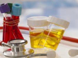 Как предупредить болезнь? 10 анализов, которые нужно сдать каждому