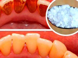 Ополаскиватель удалит зубной налёт за 1 минуту!
