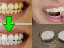 Отбеливание желтых зубов менее чем за 2 минуты!