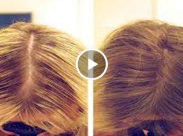 Нанесите эти 6 ингредиентов на волосы и они будут расти густыми и толстыми! Мгновенный результат!