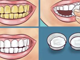 Гарантировано! Вот как осветлить желтые зубы за 2 минуты с помощью простого натурального средства! 100% результат!