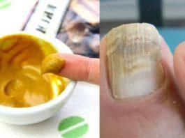 Как избавиться от грибка ногтей быстро и навсегда