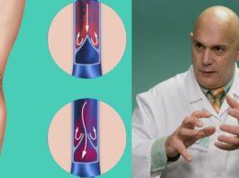«Пора лечить плохие, больные вены!» — Доктор Бубновский излагает, как лечить варикоз и как облегчить состояние…