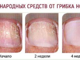 Самые эффективные народные средства от грибка ногтей