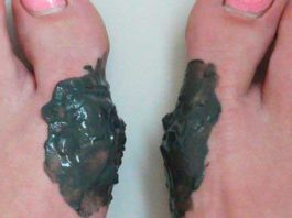 Избавься навсегда от выпирающей косточки на ноге с помощью этих народных рецептов