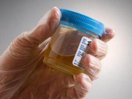 Природный супер антибиотик, который уничтожает любые инфекции мочевого пузыря и почечные инфекции уже после первого применения!