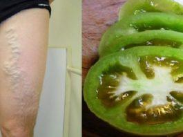 Как вылечить варикозное расширение вен с помощью помидоров