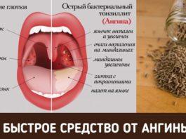 Как избавиться от боли в горле за пару часов?