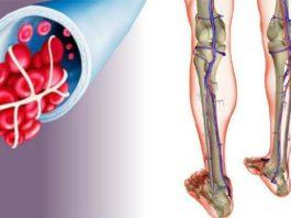 Активизация обменных процессов в крови и лимфе – восстановление здоровья