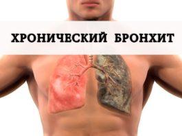 Этим методом можно побороть кашель и бронхит!