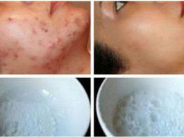 Маска для лица, магическим образом удаляющая шрамы от угревой сыпи, пятна и морщины уже после 2-го использования!