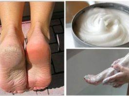 Народное средство для устранения грибков и мозолей на ногах!