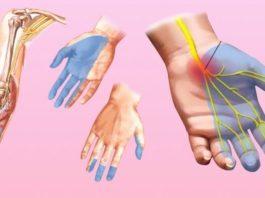 Почему немеют руки: 7 причин, которые заставляют задуматься о здоровье