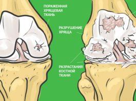 Самый эффективный способ который избавит вас от болей в суставах