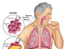 Замучил кашель? 6 самых действенных рецептов здесь!