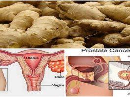 Исследованием доказано, что имбирь может исцелить рак предстательной железы, рак яичников и рак толстой кишки гораздо лучше, чем химия!