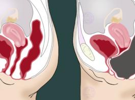 8 способов выгнать токсины из толстой кишки. Так делают все врачи!