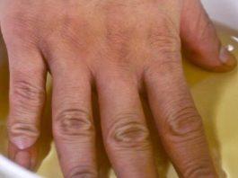 Боль в суставах рук, ног и шее: 3 мощных рецепта для быстрого устранения!