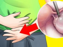 Ранние признаки кист яичников, которые большинство женщин игнорируют каждый день