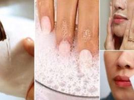 Я и не знала что перекись водорода настолько полезна для кожи! 7 способов применения для красоты!
